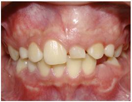 perdida-dientes-de-leche